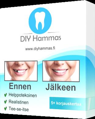 Osta DIY-hammas