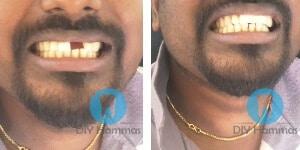 fake hammas