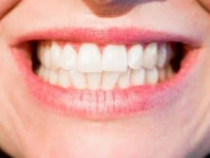 Puuttuvan hampaan korvaaminen